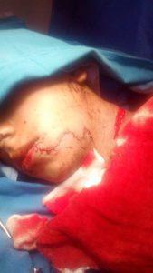 Lesionado en Huatulco