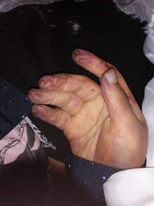 Algunas de las lesiones que presentó el cuerpo de Camilo al ser entregado a sus familiares